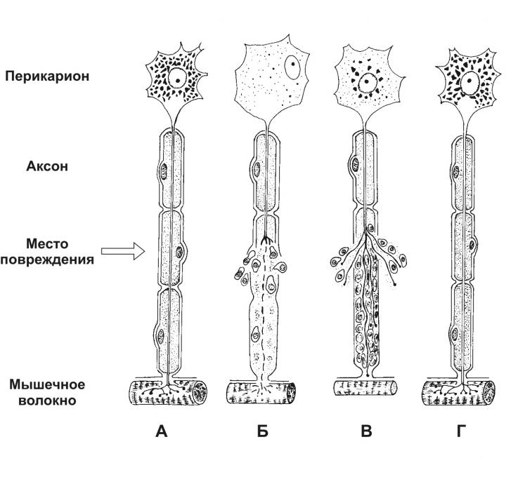 Регенерация Нерва фото